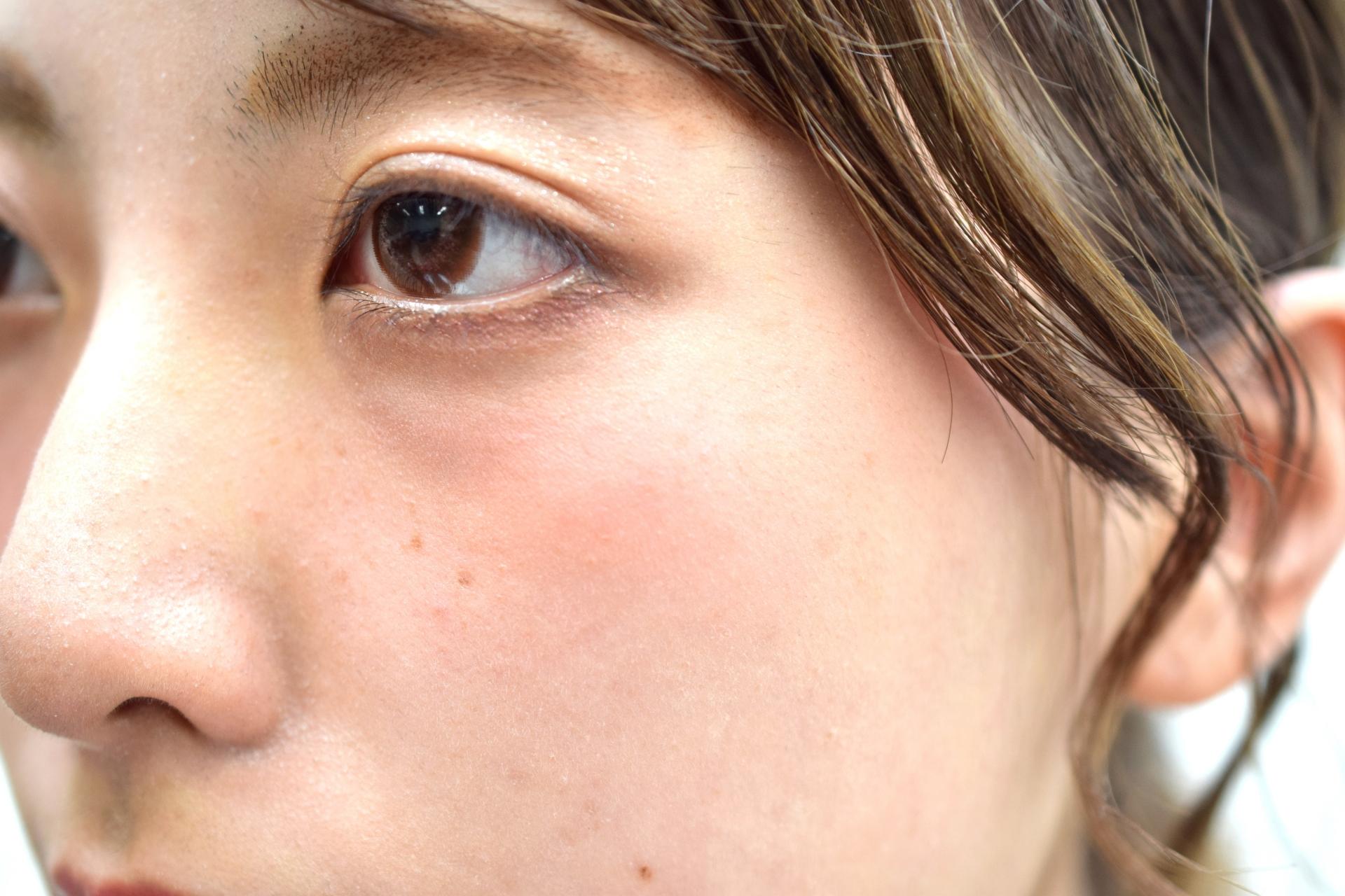 ニキビ 部位 意味 頬