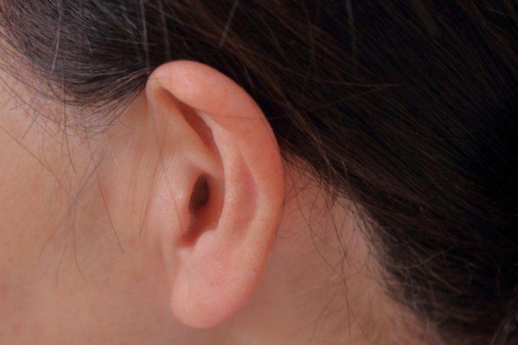 耳たぶ ニキビ